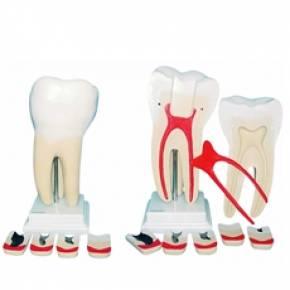Dente Molar Ampliado 8 Partes com Evolução da Cárie