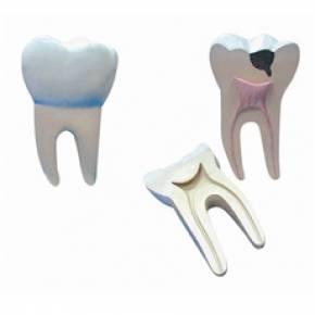 Dente Molar Ampliado – Saudável e Com Cáries