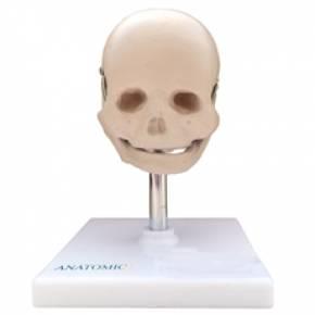 Crânio Fetal