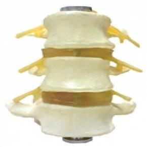 Vértebras Lombares 3 Peças