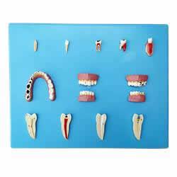 Patologia Dentária com 12 Peças