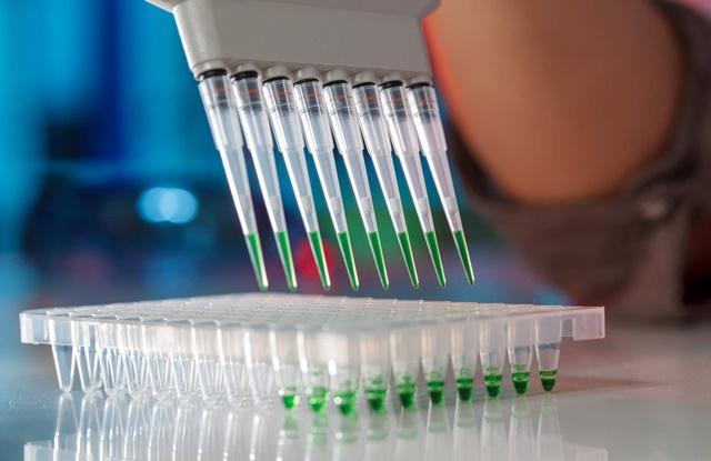 foto de técnica de PCR